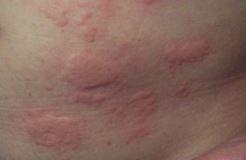 siliconen allergie symptomen